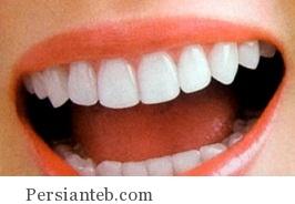 چطور می توان دندان هایی سفید داشت؟!