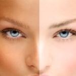 برنزه کردن پوست با هر روشی عارضه دارد!