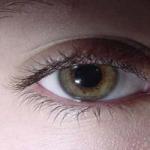 برخی علائم خطرناک چشم که باید جدی گرفته شوند !