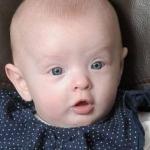 تولد حیرت انگیز دختری بدون حتی یه قطره خون !