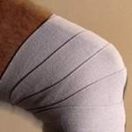 آسیب های مفاصل را بشناسید