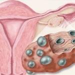 راه های کنترل سندروم تخمدان