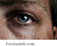 Araghe Shoor_persianteb.com