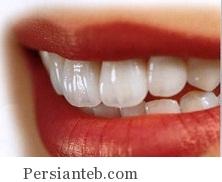خوراکی های مفید برای دندان