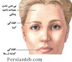 Falaje Bel_persianteb.com