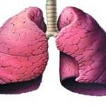 عفونت ریه را جدی بگیرید