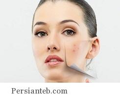 acne_persianteb.com