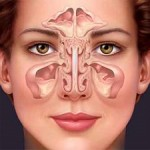 مزایای جراحی آندوسکوپی سینوس!