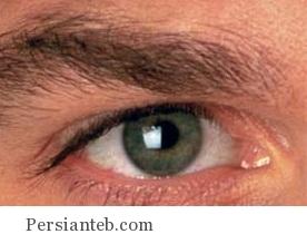 astigmatism_persianteb.com