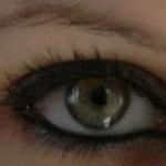 رنگ چشم و بیماری های مرتبط با آن