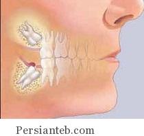 تسکین درد دندان عقل با سیر و پیاز
