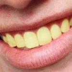 با رنگ زرد دندان چه کنیم!