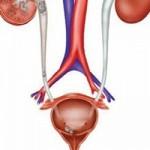 علل بیماری التهاب مثانه