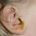 درد ناگهانی گوش را جدی بگیرید