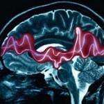 ۲۱ نکته مهم در مورد بیماری صرع