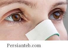 بعد از گذشت چه مدت می توان بینی شکسته را جا انداخت؟