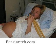 تاثیر گاز های بیهوشی در زنان باردار