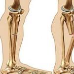 مشکلات تغذیه در بیماری استخوانهای شکننده