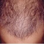 اطلاعاتی در مورد ریزش مو