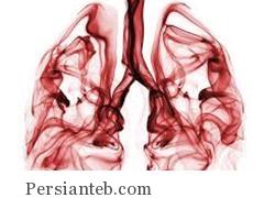 ظاهر شدن سرطان ریه دو دهه طول می کشد!