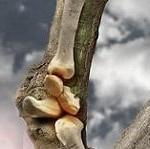 مقاله ای کوتاه در مورد التهاب مفاصل