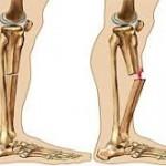 شکستگی استخوان خطر آمبولی را در پی دارد؟