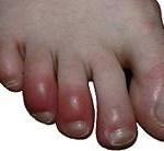 علائم بیماری پوستی چيل بلين و راه پیشگیری از آن
