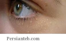 بیماری پوستی میلیا و درمان آن