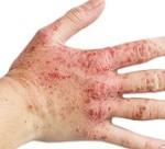 علائم و درمان اگزمای دست
