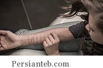 درمان آسیب زدن به خود