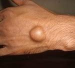 از بیماری گانگلیون چه می دانید+راه درمان آن