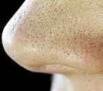 بهبود لکه های سیاهی که بر روی بینی هستند، با این ۳ روش!