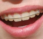 اگر دندان هایتان را ارتودنسی کرده اید، حتما بخوانید!