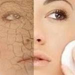 با این نکته ها از شر پوست خشک خود راحت شوید!