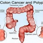 علائم سرطان روده بزرگ چیست؟!