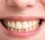 دلایل و روش های درمان دندان های زرد