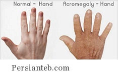 عوامل شکلگیری بیماری آکرومگالی و درمان آن