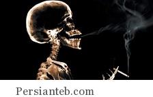 نازک شدن قسمتی از مغز،