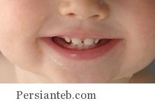 هر آنچه که باید از دندان شیری بدانید!