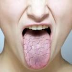 خشکی دهان و چگونگی درمان سریع آن!