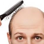 مهمترین علل ریزش موی غیرقابلبرگشت چیست؟