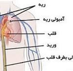 نشانه های بیماری آمبولی ریه را بهتر بشناسید!