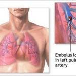 بیماری آمبولی ریه: علائم، درمان و پیشگیری