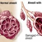 بیماری آمفیزم: علائم، درمان و پیشگیری