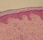بیماری آمیلوبلاستوما: علائم، درمان و پیشگیری
