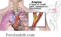 بیماری آنژین صدری پایدار