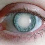 بیماری آب سیاه: علائم، درمان و پیشگیری
