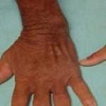بیماری آکرومگالی: علائم، درمان و پیشگیری