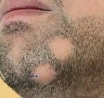 بیماری آلوپسی (طاسی): علائم، درمان و پیشگیری