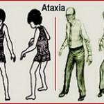 بیماری آتاکسی (عدم تعادل): علائم، درمان و پیشگیری